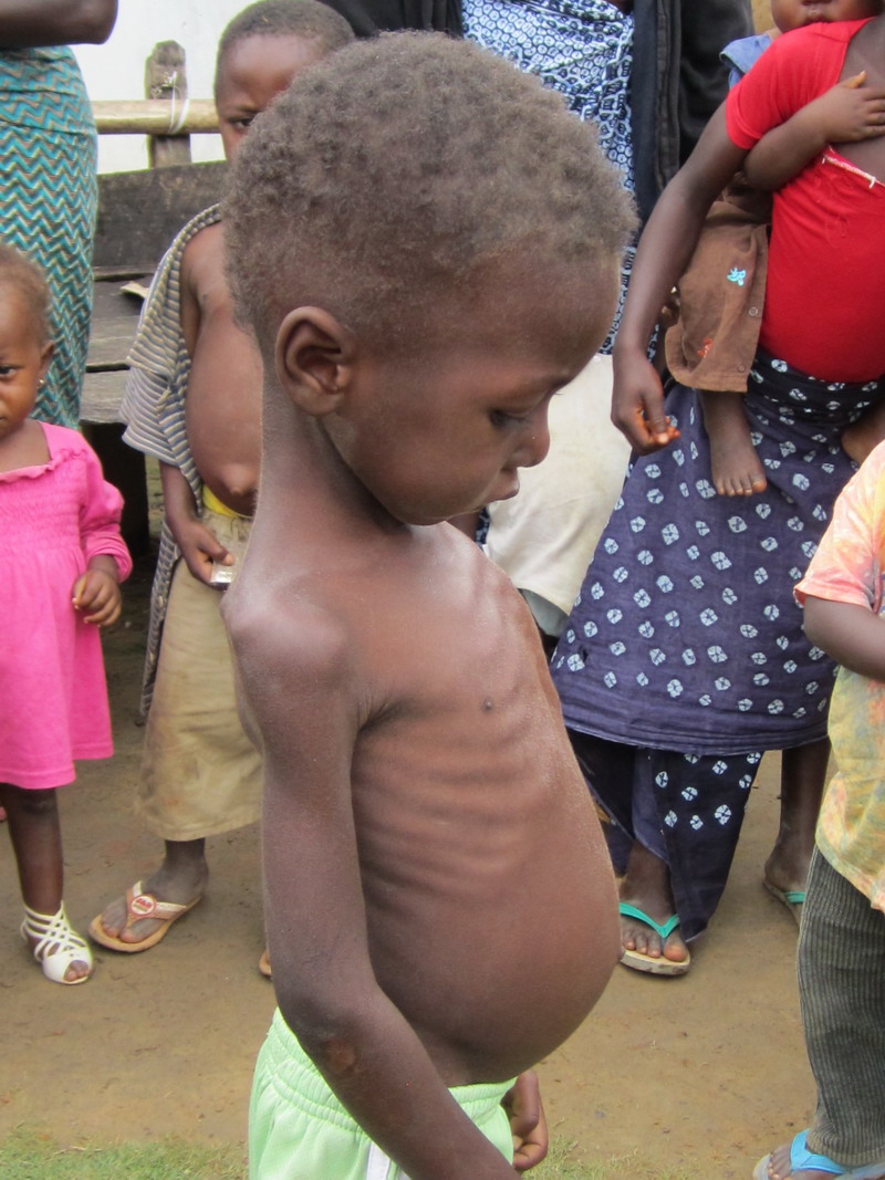 Kpaytuo Village broke our hearts to see all these malnourished children.